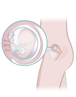 Semana 9 De Embarazo Inatal El Embarazo Semana A Semana